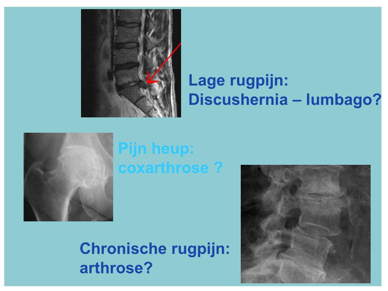 Lage rugpijn: Discushernia – lumbago Pijn heup: coxarthrose Chronische rugpijn: arthrose