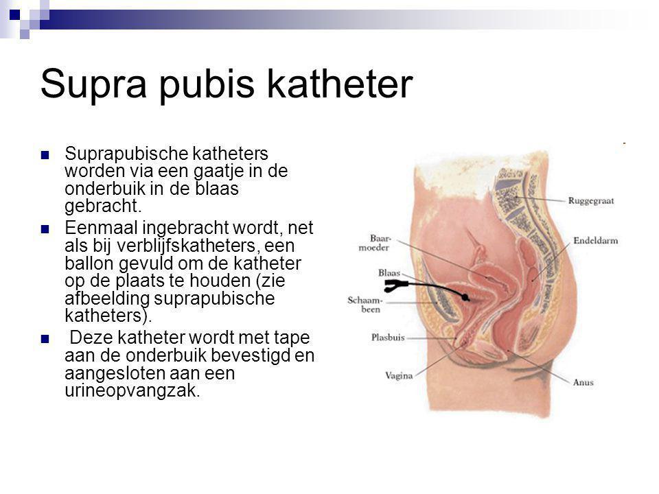 Supra pubis katheter Suprapubische katheters worden via een gaatje in de onderbuik in de blaas gebracht.