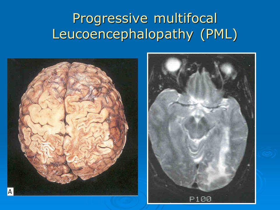 Progressive multifocal Leucoencephalopathy (PML)