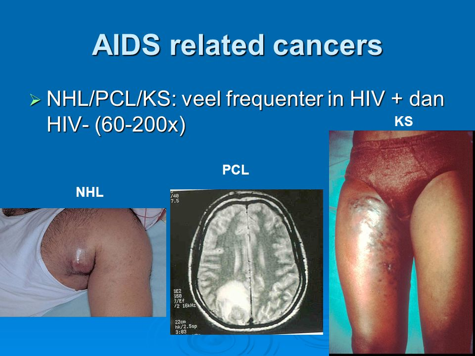 AIDS related cancers NHL/PCL/KS: veel frequenter in HIV + dan HIV- (60-200x) KS PCL NHL