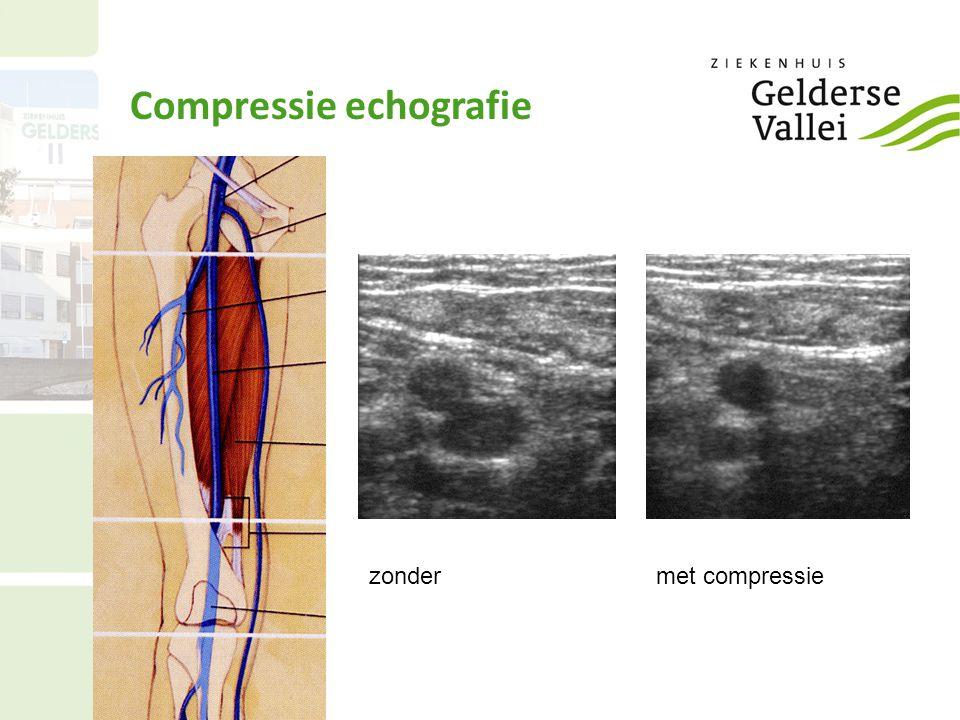 Compressie echografie