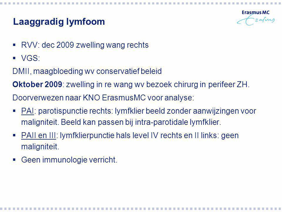 Laaggradig lymfoom RVV: dec 2009 zwelling wang rechts VGS: