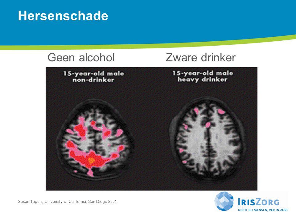 Hersenschade Geen alcohol Zware drinker