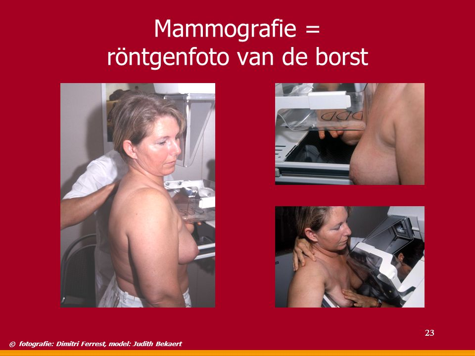 Mammografie = röntgenfoto van de borst
