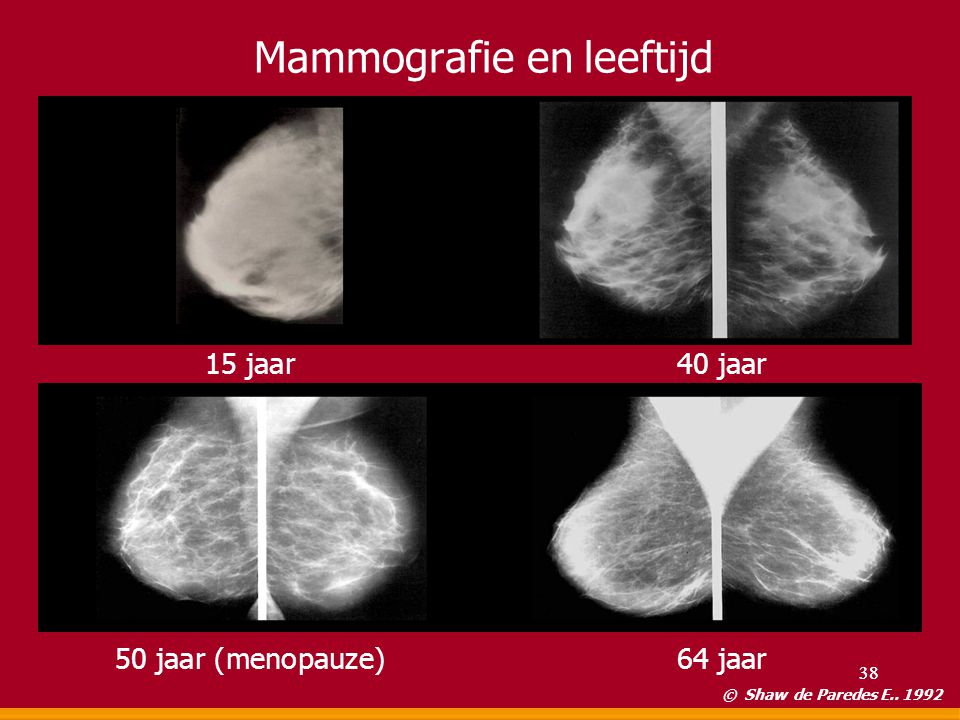 Mammografie en leeftijd