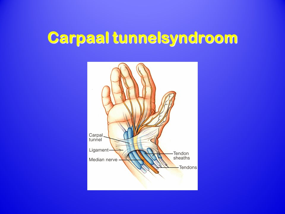 Carpaal tunnelsyndroom