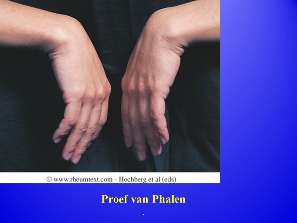 Fig. 63. 12 Phalen s (wrist flexion) test