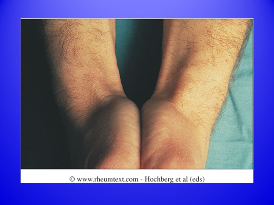 Fig. 57.11 De Quervain s tenosynovitis of the wrist.