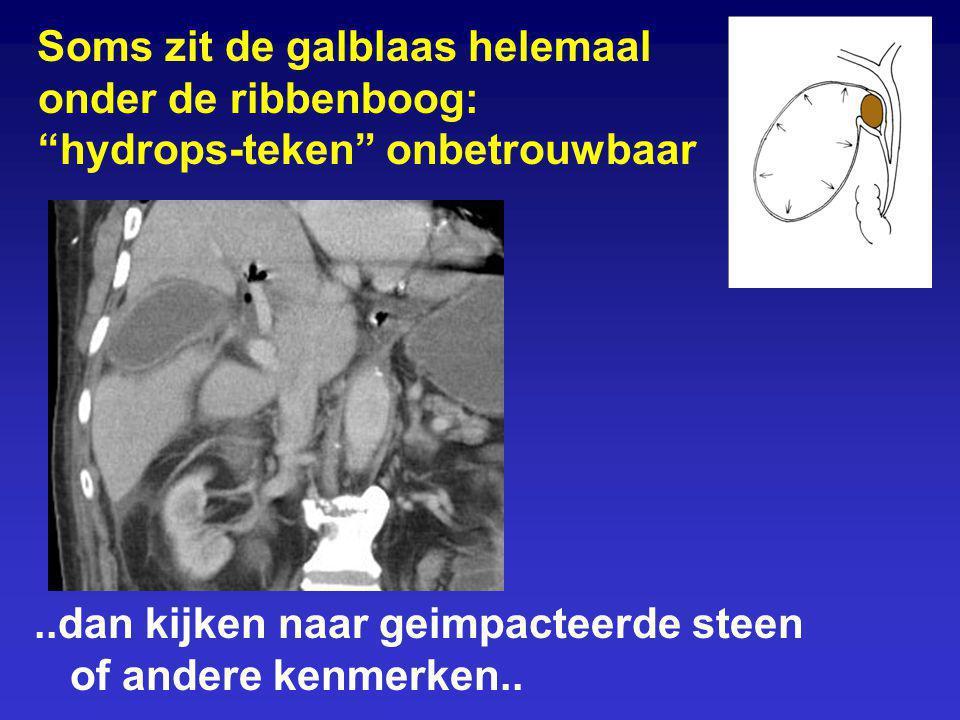 Soms zit de galblaas helemaal onder de ribbenboog: hydrops-teken onbetrouwbaar