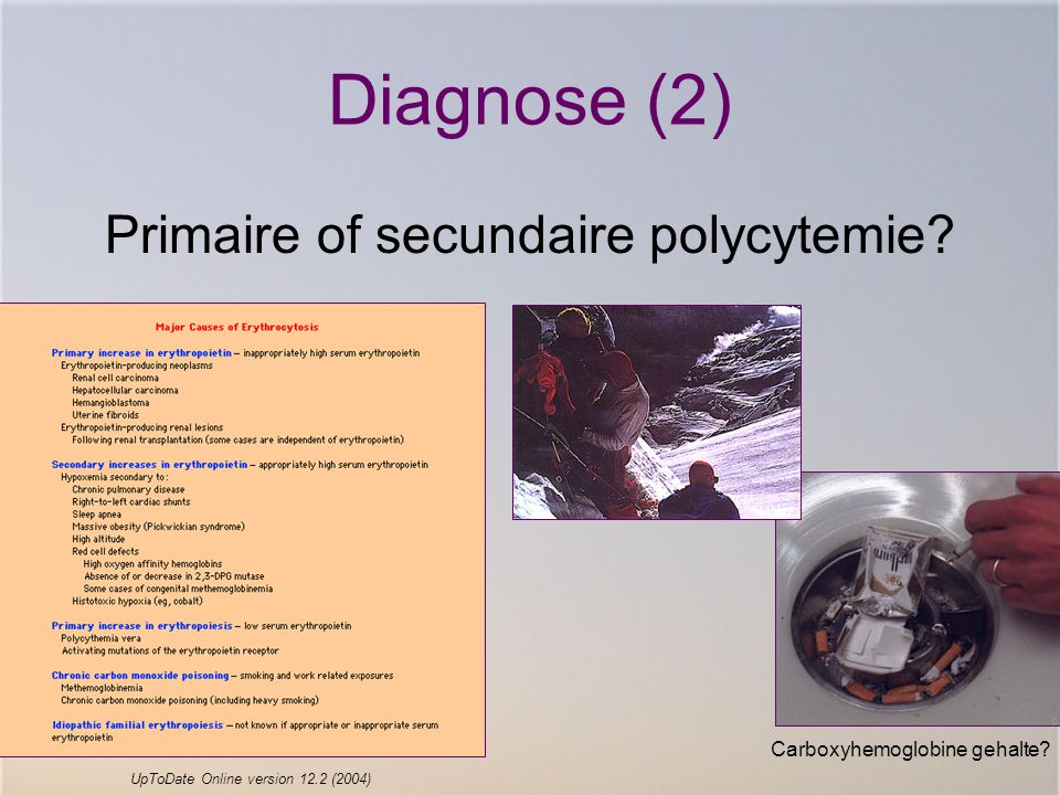 Diagnose (2) Primaire of secundaire polycytemie