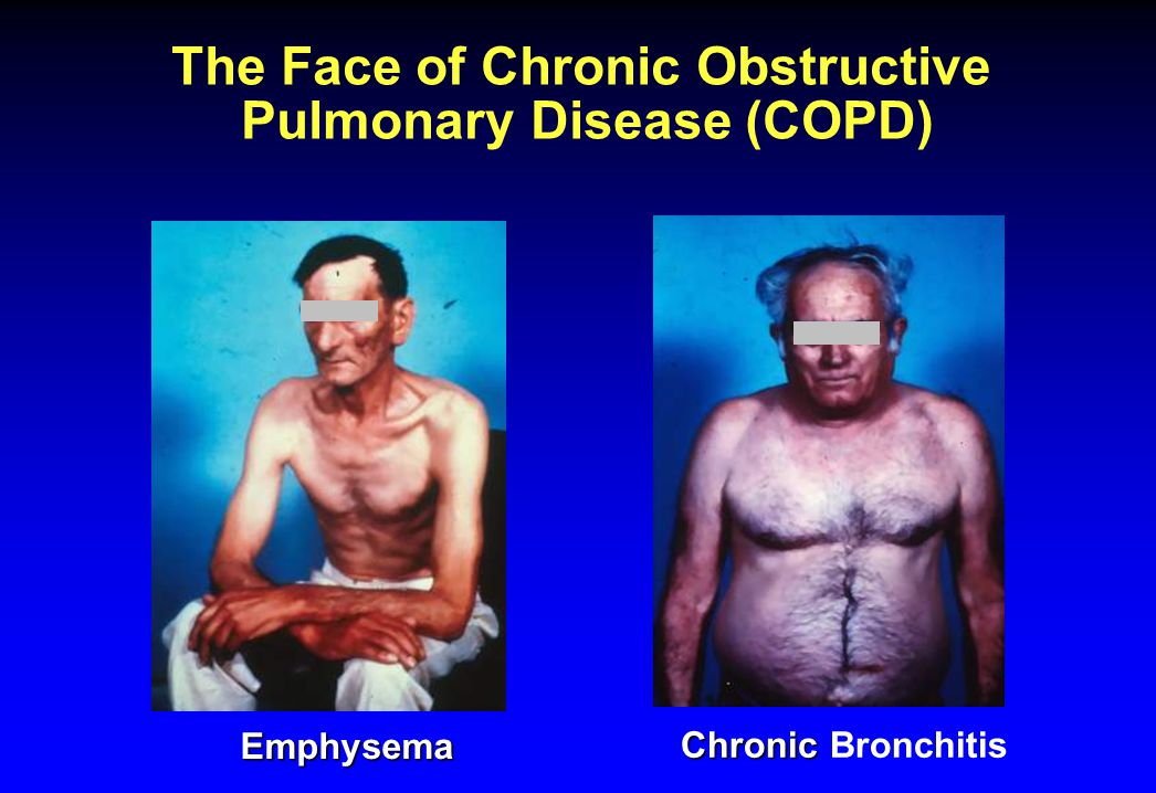 The Face of Chronic Obstructive Pulmonary Disease (COPD)