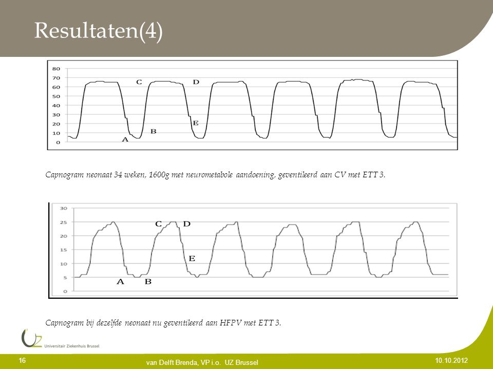 Resultaten(4) Capnogram neonaat 34 weken, 1600g met neurometabole aandoening, geventileerd aan CV met ETT 3.