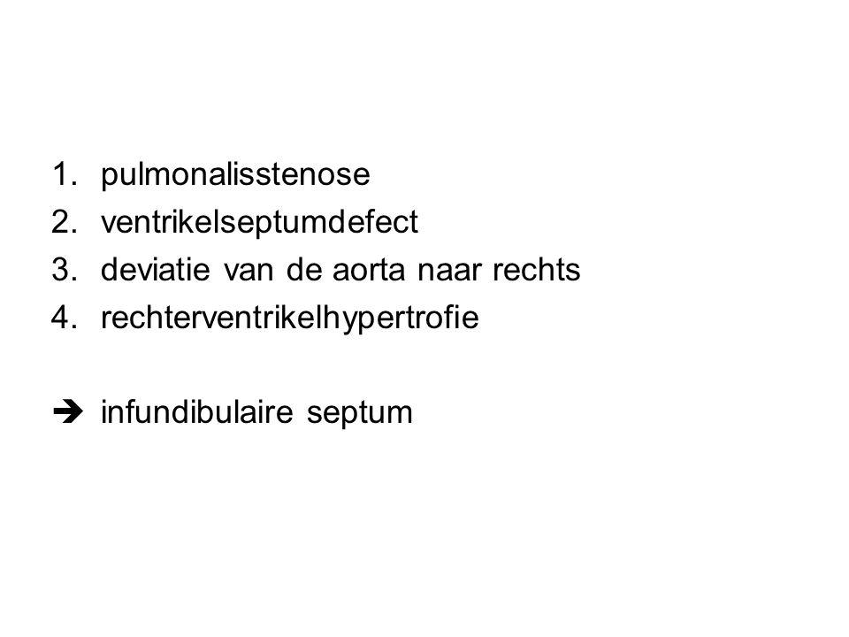 pulmonalisstenose ventrikelseptumdefect. deviatie van de aorta naar rechts. rechterventrikelhypertrofie.