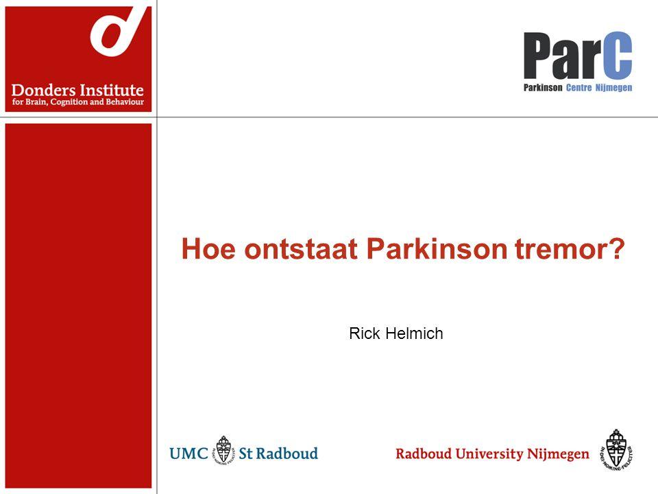 Hoe ontstaat Parkinson tremor