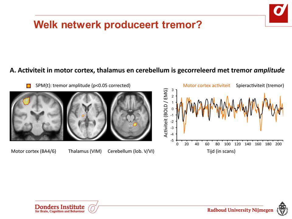 Welk netwerk produceert tremor