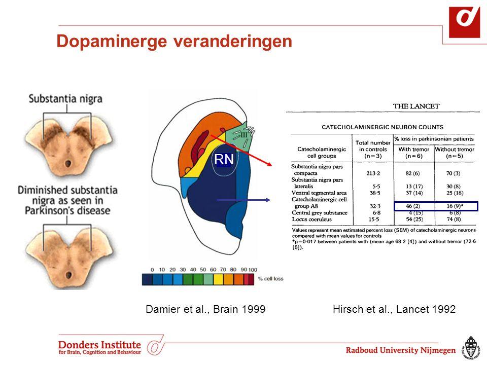 Dopaminerge veranderingen