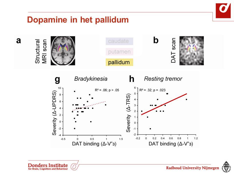 Dopamine in het pallidum