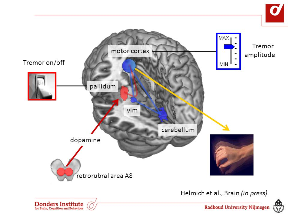 Helmich et al., Brain (in press)