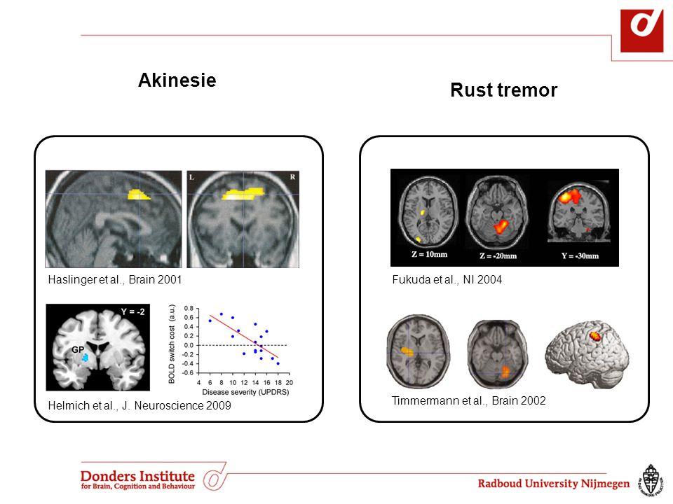 Akinesie Rust tremor Haslinger et al., Brain 2001