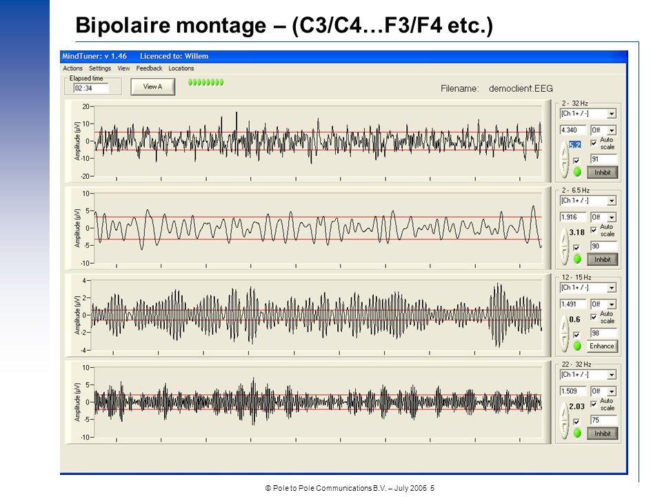 Bipolaire montage – (C3/C4…F3/F4 etc.)
