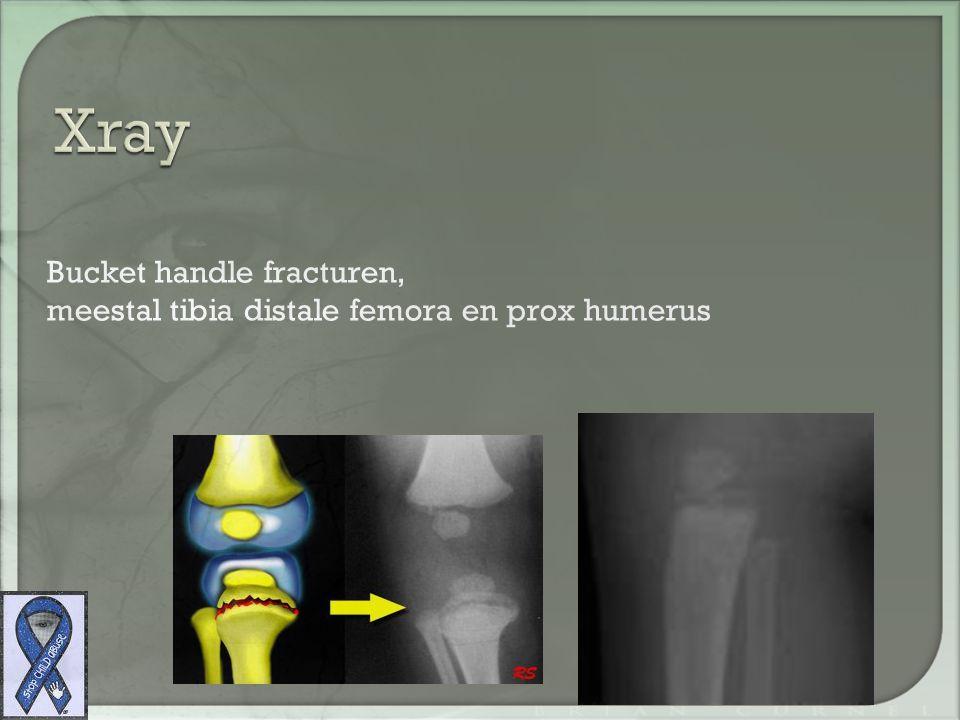 Bucket handle fracturen, meestal tibia distale femora en prox humerus