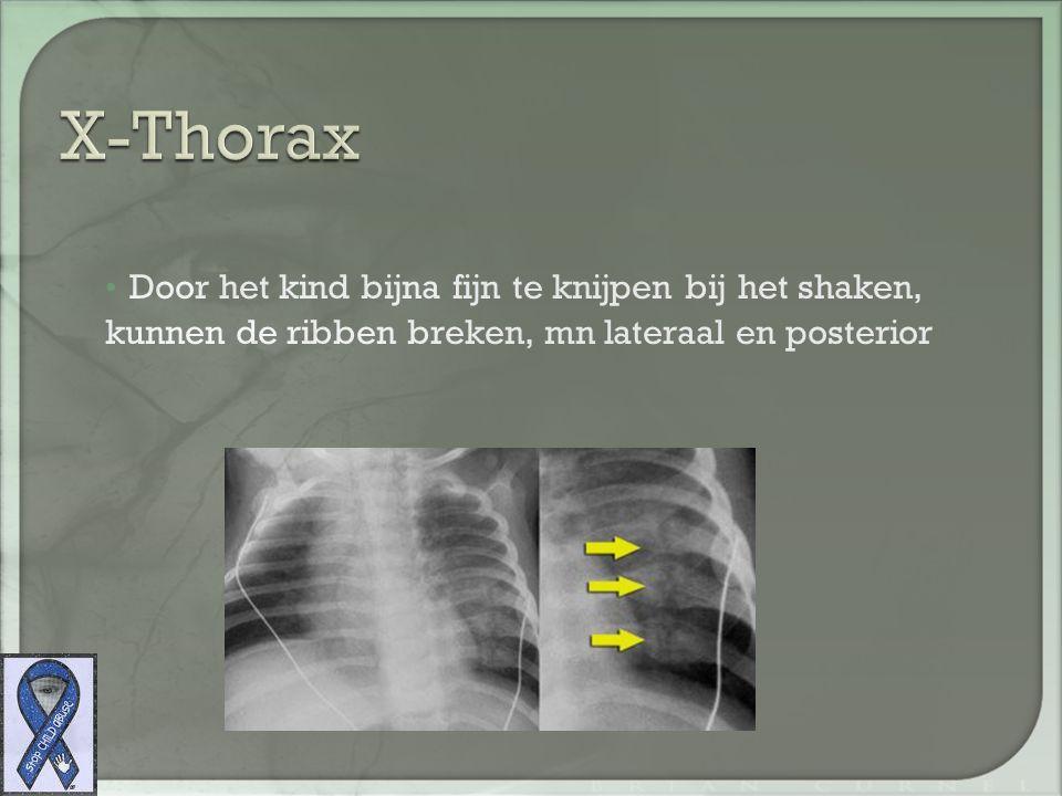 X-Thorax Door het kind bijna fijn te knijpen bij het shaken, kunnen de ribben breken, mn lateraal en posterior.