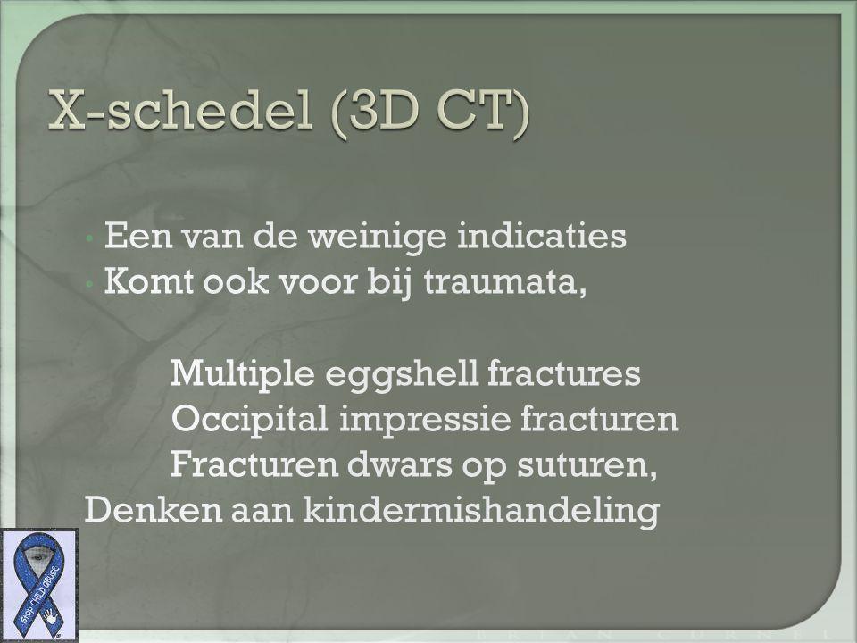 X-schedel (3D CT) Een van de weinige indicaties