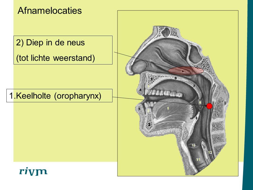 Afnamelocaties 2) Diep in de neus (tot lichte weerstand)