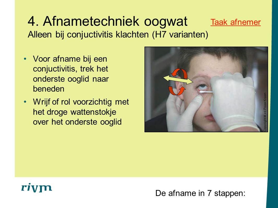 4. Afnametechniek oogwat Alleen bij conjuctivitis klachten (H7 varianten)