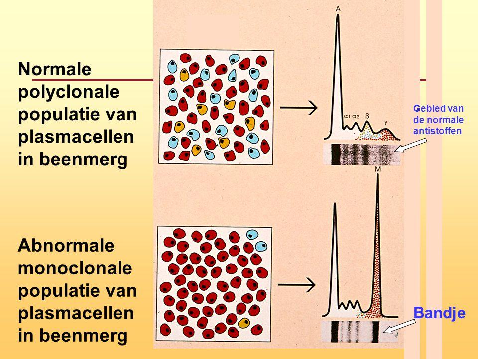 Normale polyclonale populatie van plasmacellen in beenmerg