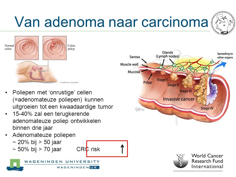 Van adenoma naar carcinoma