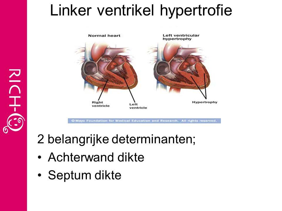 Linker ventrikel hypertrofie