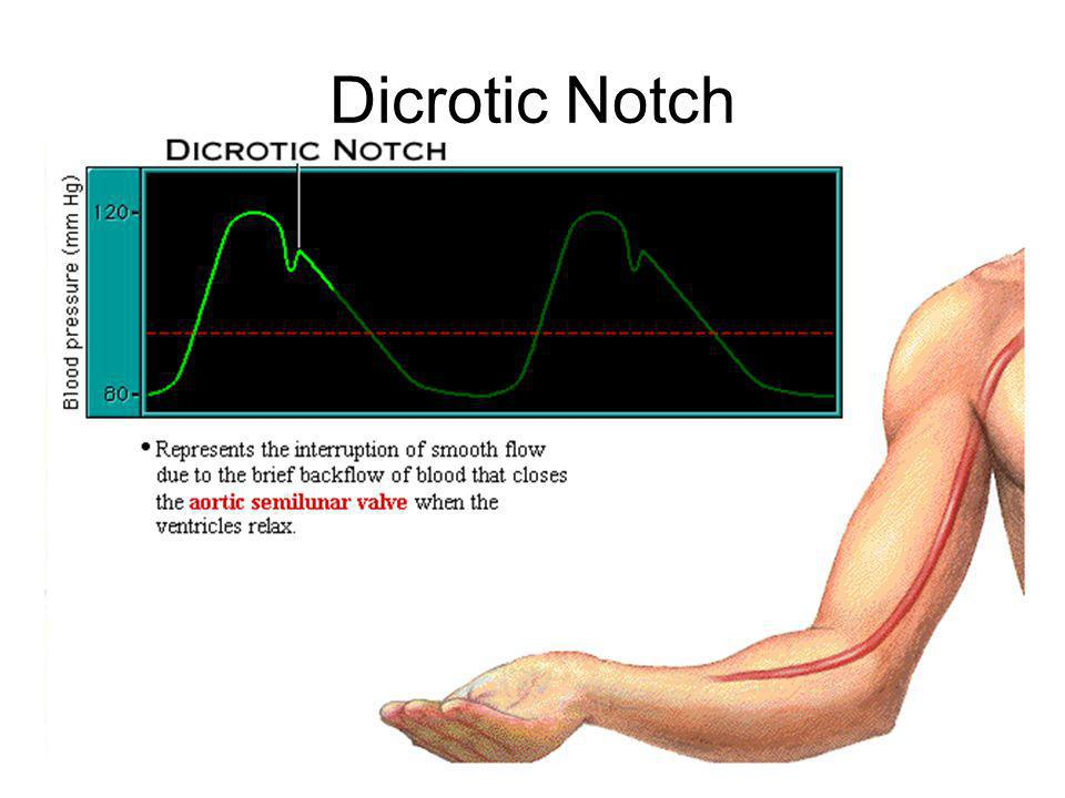 Dicrotic Notch