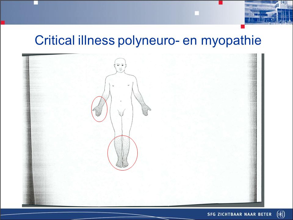 Critical illness polyneuro- en myopathie