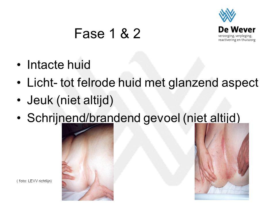 Fase 1 & 2 Intacte huid Licht- tot felrode huid met glanzend aspect