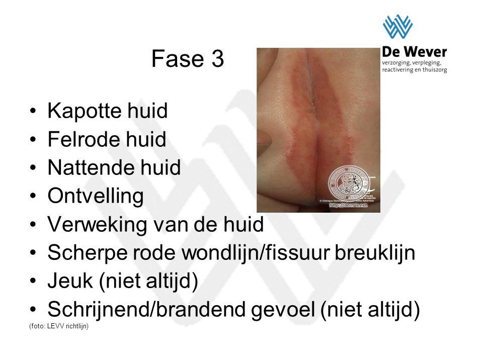 Fase 3 Kapotte huid Felrode huid Nattende huid Ontvelling