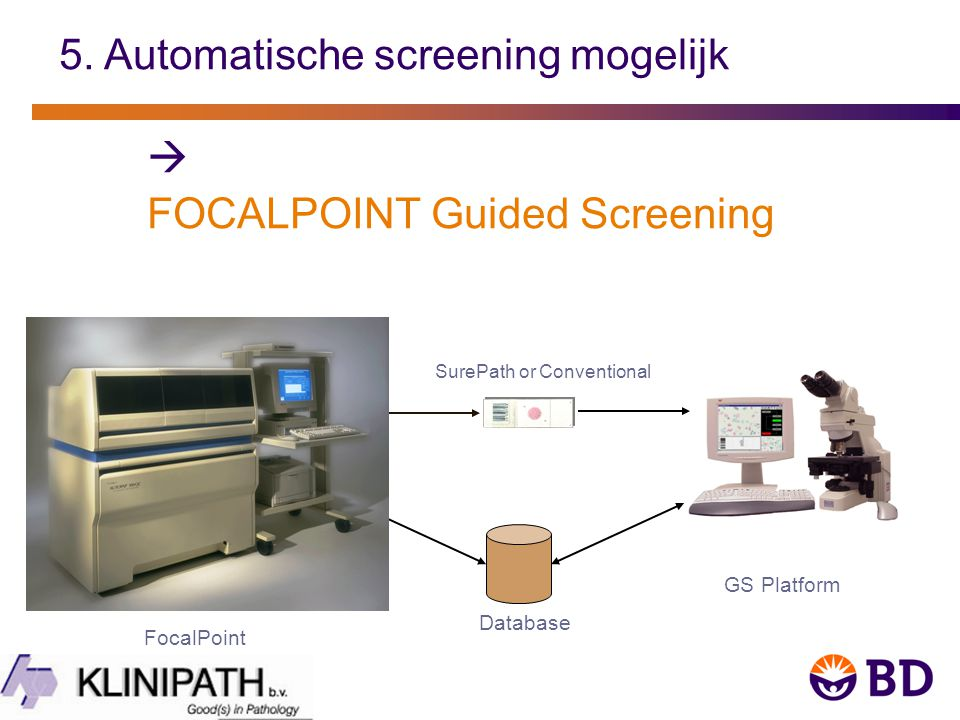 5. Automatische screening mogelijk  FOCALPOINT Guided Screening