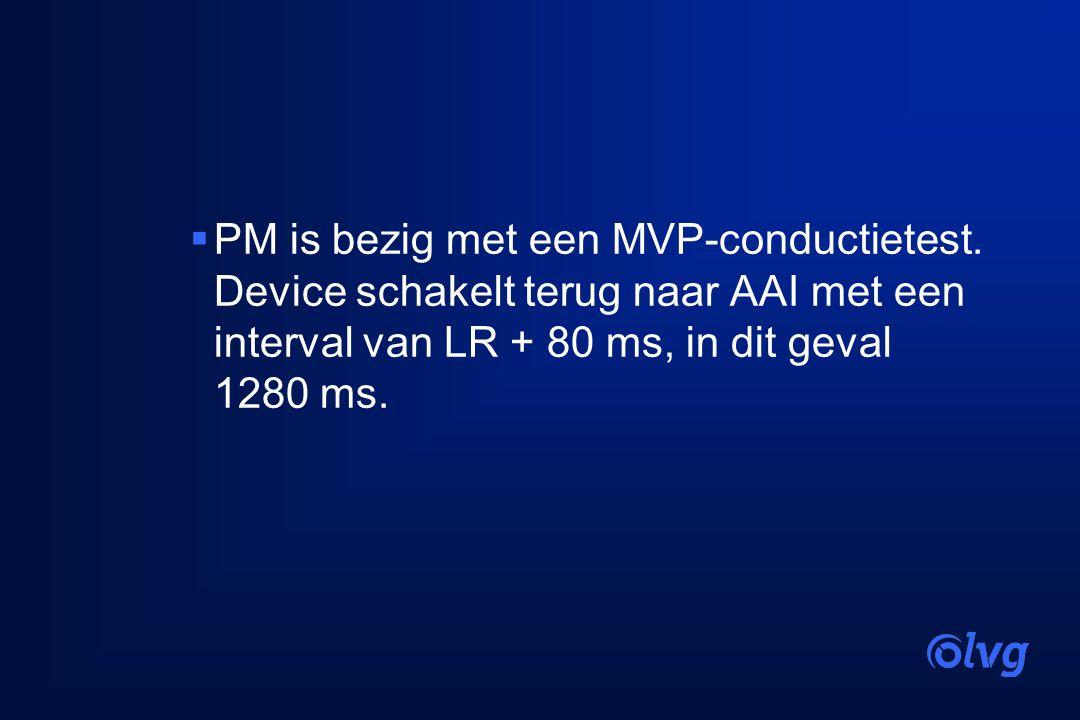 PM is bezig met een MVP-conductietest
