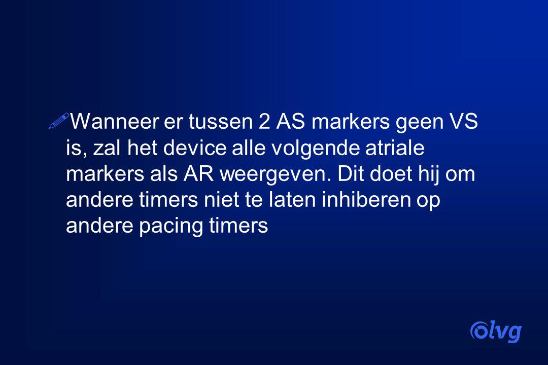 Wanneer er tussen 2 AS markers geen VS is, zal het device alle volgende atriale markers als AR weergeven.