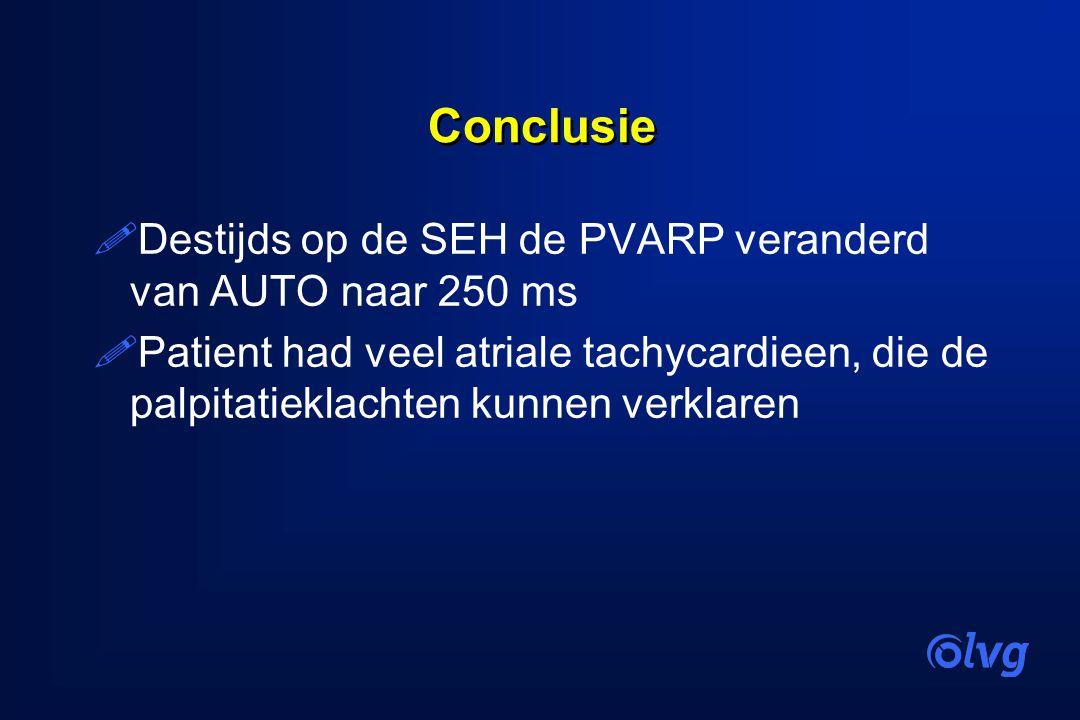 Conclusie Destijds op de SEH de PVARP veranderd van AUTO naar 250 ms