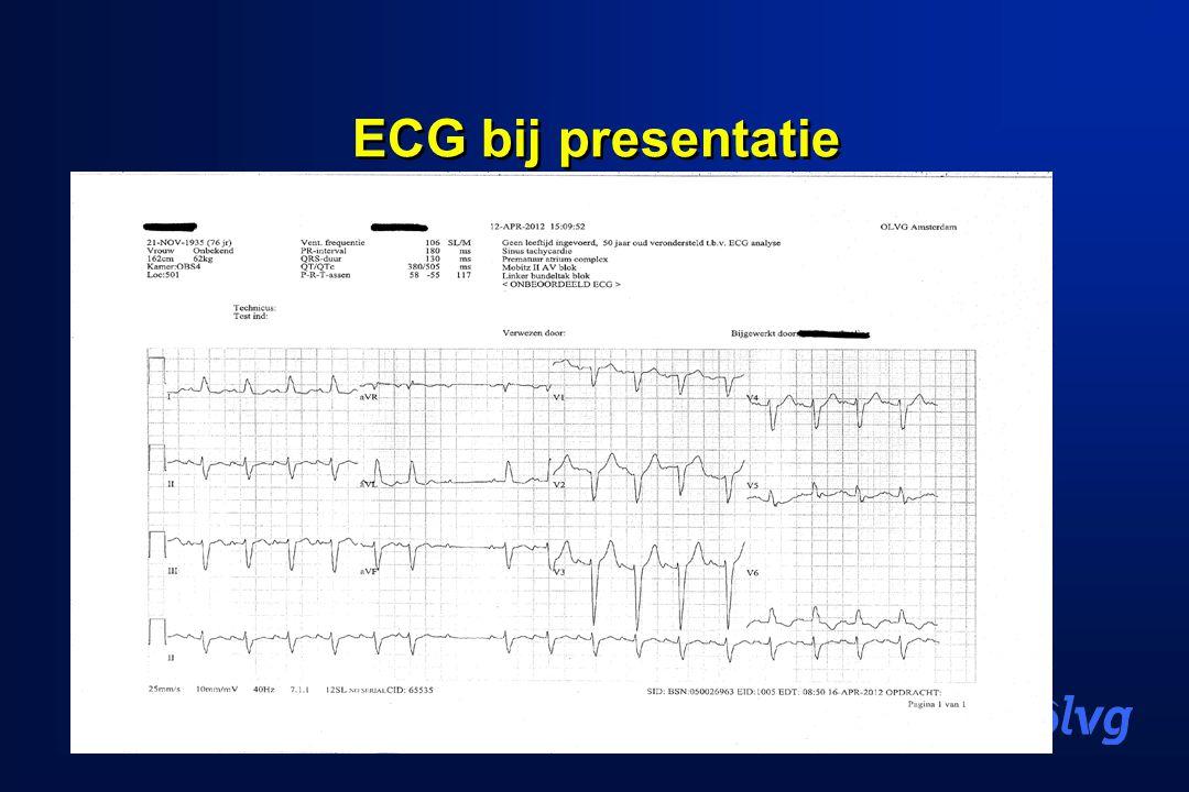 ECG bij presentatie
