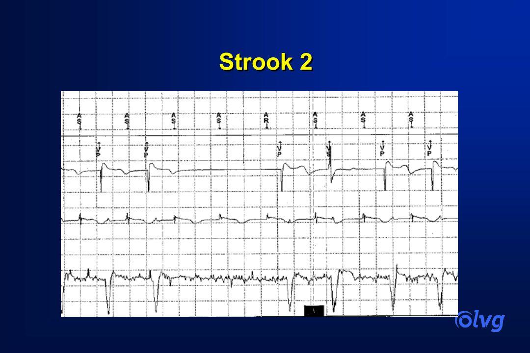 Strook 2