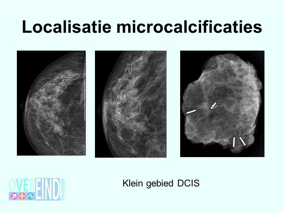 Localisatie microcalcificaties