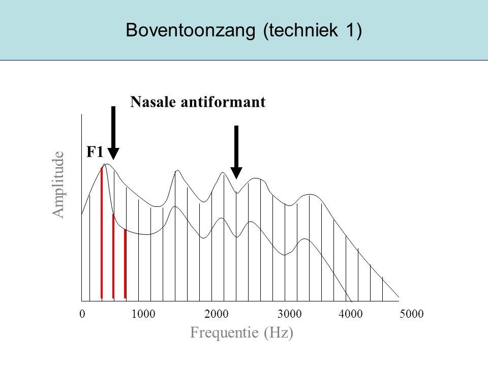 Boventoonzang (techniek 1)