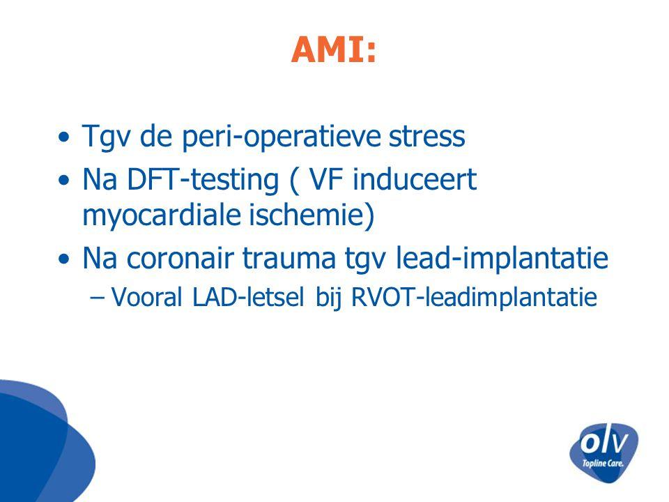 AMI: Tgv de peri-operatieve stress