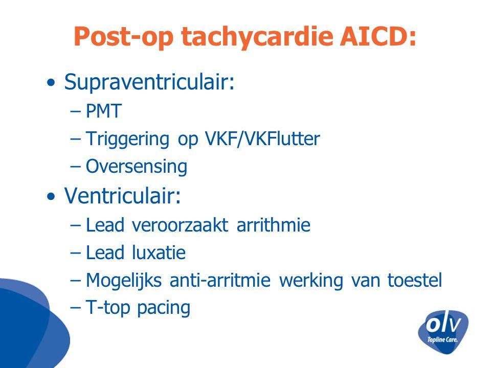 Post-op tachycardie AICD: