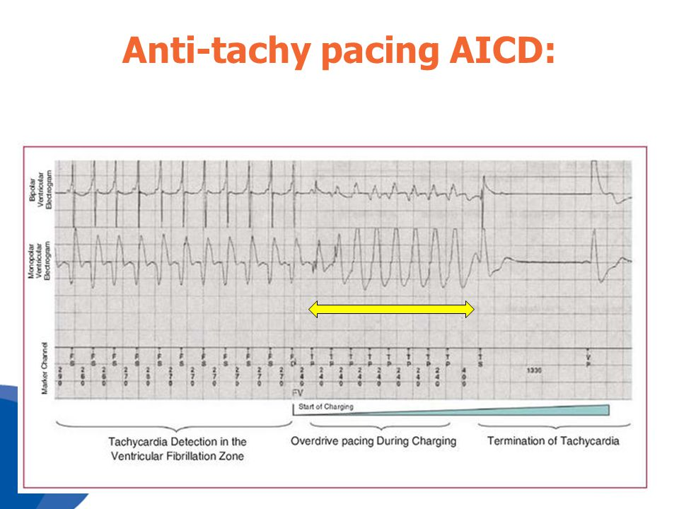 Anti-tachy pacing AICD:
