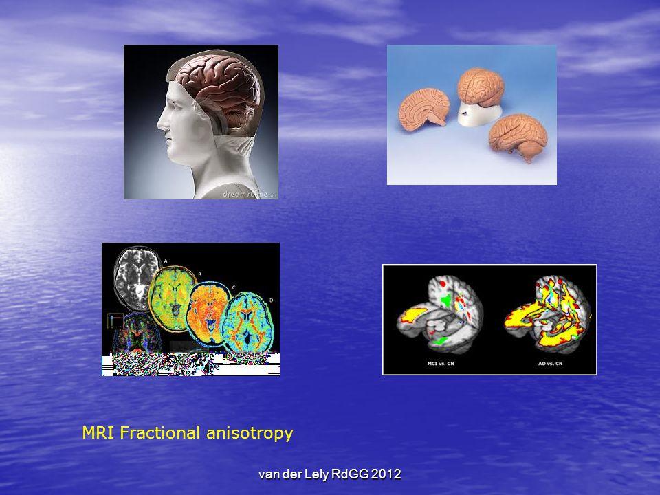 MRI Fractional anisotropy