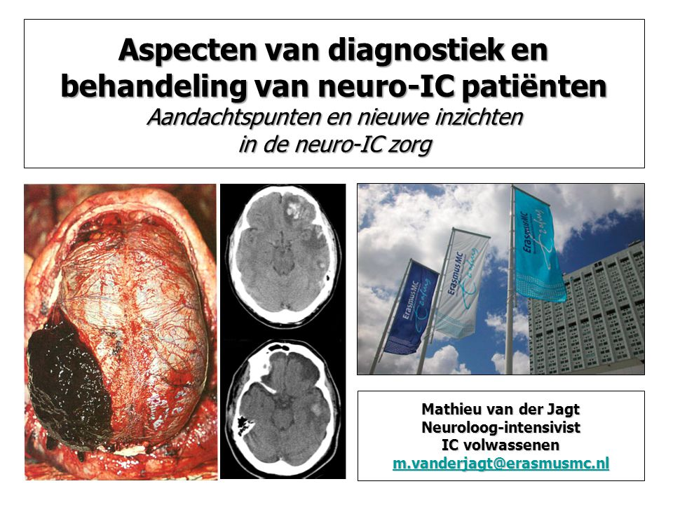 Aspecten van diagnostiek en behandeling van neuro-IC patiënten Aandachtspunten en nieuwe inzichten in de neuro-IC zorg