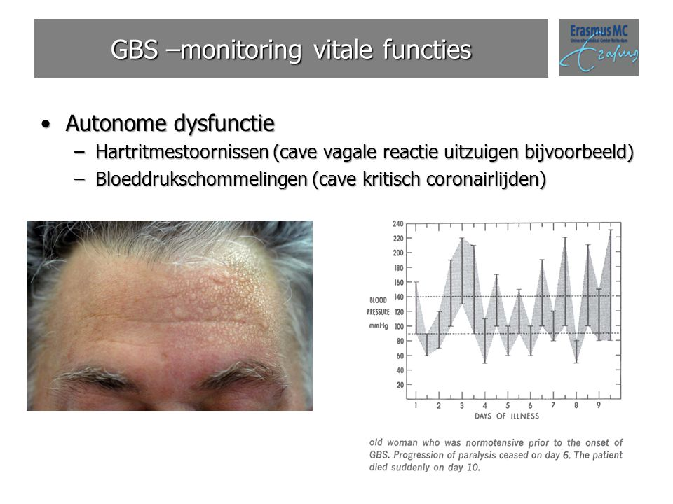 GBS –monitoring vitale functies